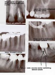 front tooth root canal