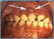 abcess teeth