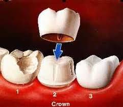 crown molar
