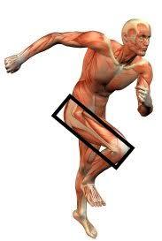 it band tendonitis