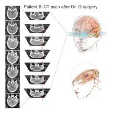 ct scans head