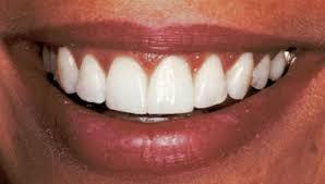 dental bonding material