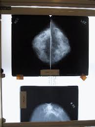mammography films