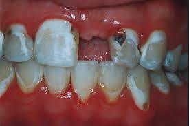 bad teeth gallery