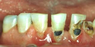cavity on front teeth