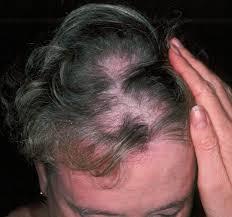 diffuse alopecia
