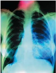 lung x ray pneumonia