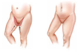 high lateral tension abdominoplasty