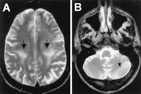 progressive multifocal leukoencephalopathy mri