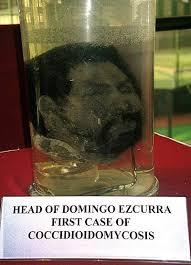 fungus on the head