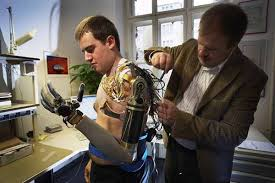 protesis de brazos