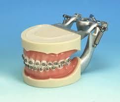 dental typodonts