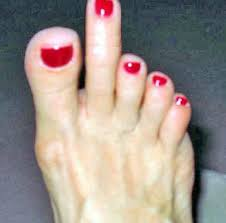 picture of toe