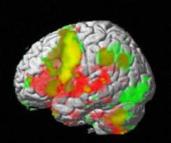 brain fmri