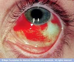broken eye vessel