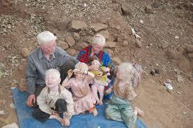 albino kids