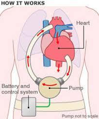 heart pump