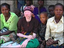 albino men
