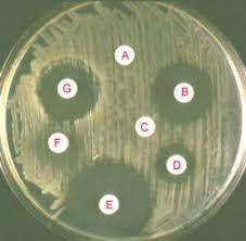 antibiotic testing