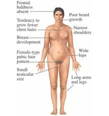 chromosome syndrome