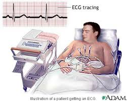 electrocardiogram machine
