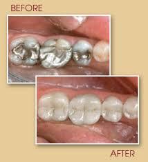 filling teeth