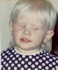 albinism eyes