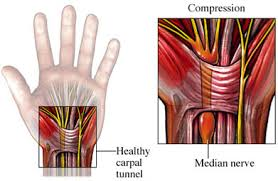 carpal tunnel syndrome injection
