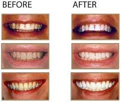 laser tooth whitener