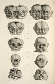 anatomical skulls