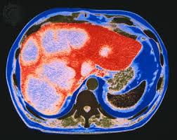abdomen ct scan