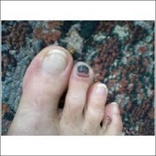 brown toenail