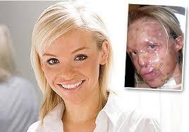 burns face