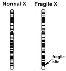 fragile x photos