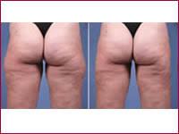liposuction thighs photos