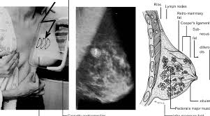 mammography positioning