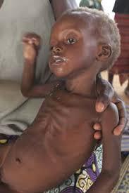 african malnutrition