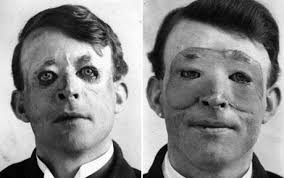 plastic surgeons face
