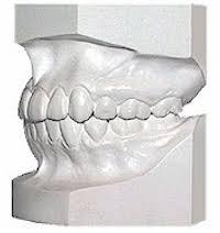 orthodontic study models
