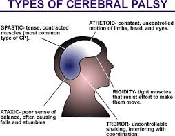 images of cerebral palsy