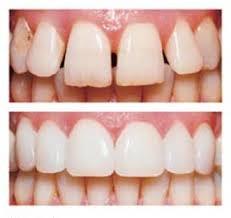 cosmetic dental veneers
