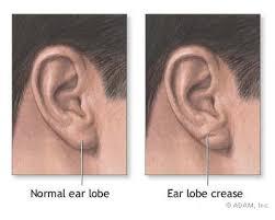 ear creases