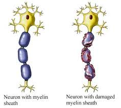 myelin sheath damage