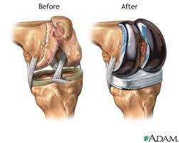 how to make a knee joint