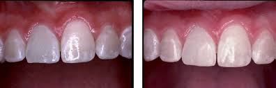 root canal front tooth