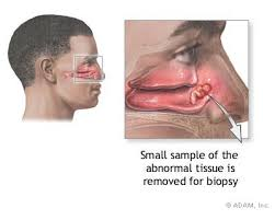 mucosal tissue