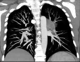 mri pulmonary embolism
