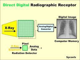 direct digital radiography