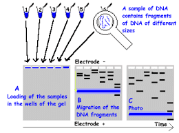 dna electrophoresis diagram