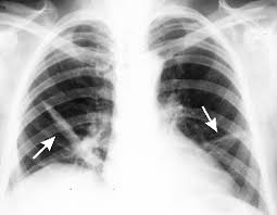 chest x ray atelectasis